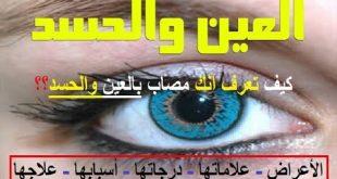 العين وعلاماتها وطرق علاجها باذن الله
