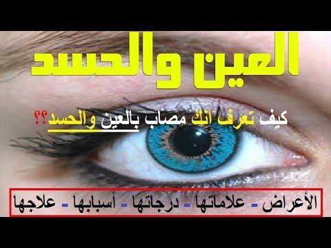 العين و الحسد  الاعراض  العلامات  الدرجات  تأثيرها  طرق الوقايه و العلاج   هل لديك هذي الاعراض. <p></p><br> YouTube