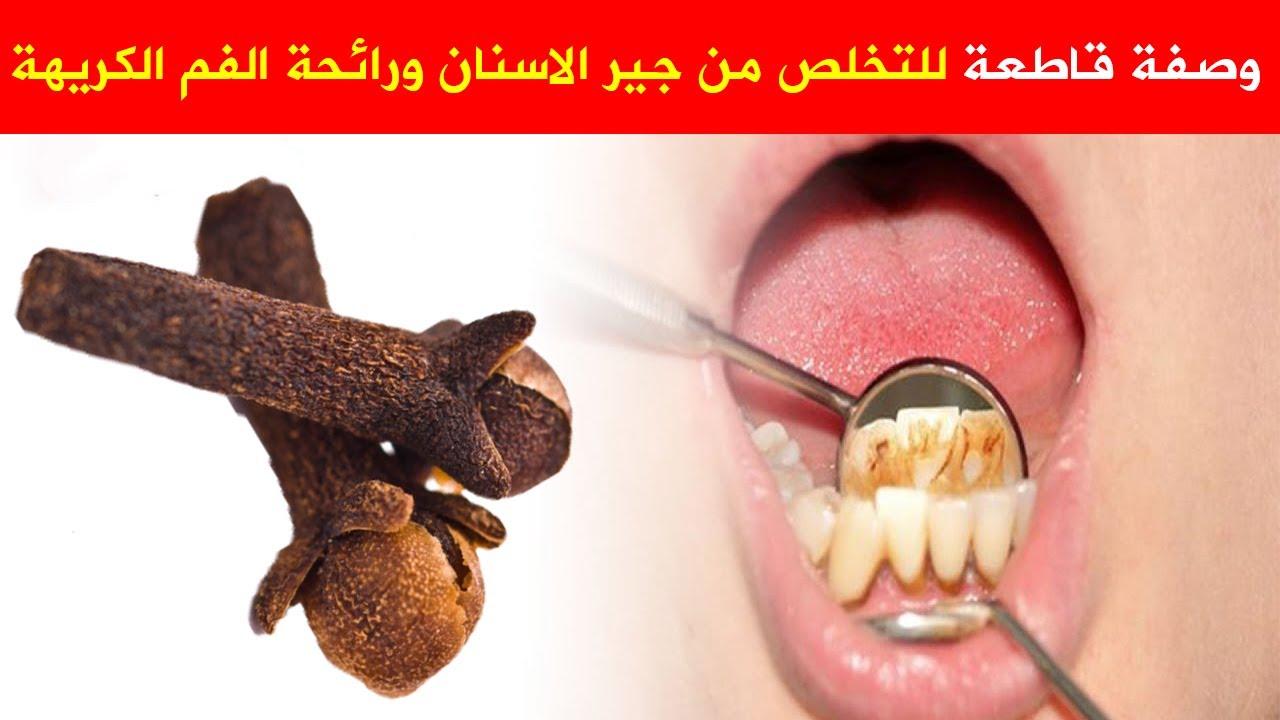 هذه اروع و صفة اكيده للتخلص من جير الاسنان و رائحه الفم الكريهة طريقة القضاء  على رائحه الفم السيئه  YouTube