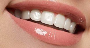 أسعار تلبيس الأسنان الزيركون | البورسلين والتكلفة | تجميلي