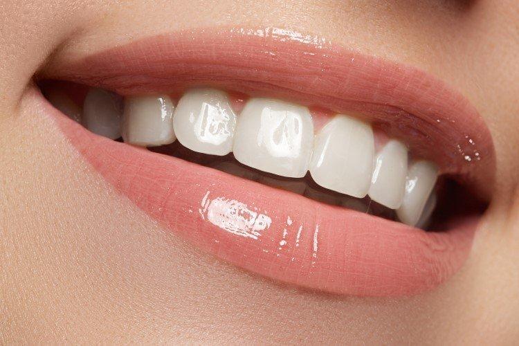 أسعار تلبيس الأسنان الزيركون | البورسلين و التكلفه | تجميلي